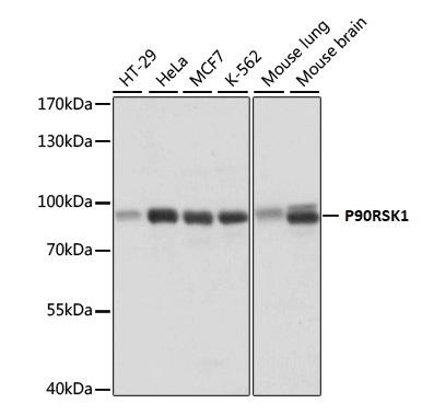 Anti P90RSK1 Antibody gallery image 1