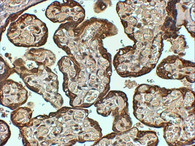 Anti Human PAI-1 Antibody thumbnail image 3