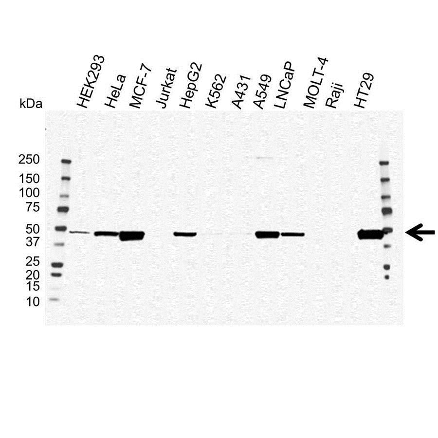 Anti PAI-1 Antibody (PrecisionAb Polyclonal Antibody) gallery image 1