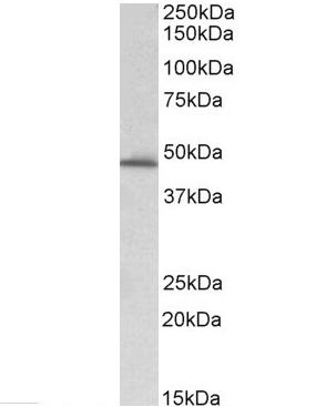 Anti PAI-1 Antibody (PrecisionAb Polyclonal Antibody) thumbnail image 2