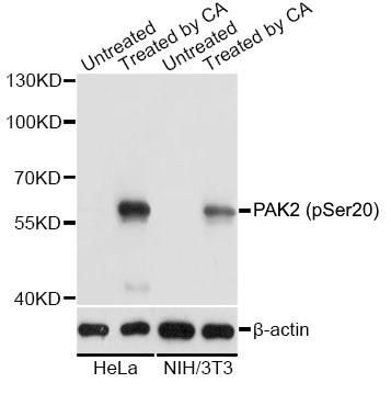 Anti PAK2 (pSer20) Antibody gallery image 1