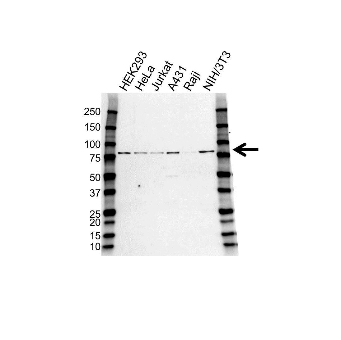Anti PAK6 Antibody (PrecisionAb Polyclonal Antibody) gallery image 1
