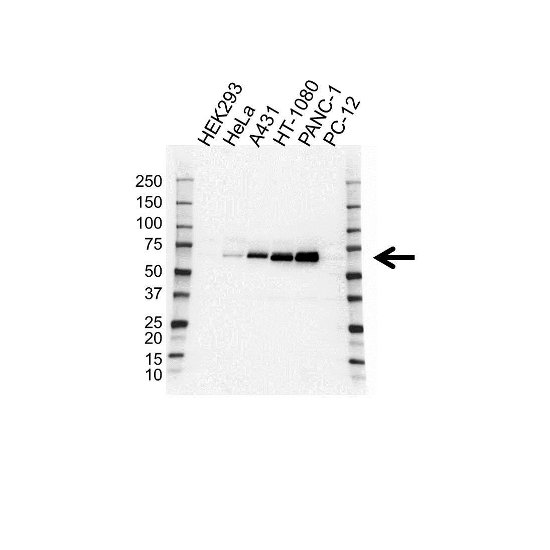 Anti Paxillin Antibody (PrecisionAb Polyclonal Antibody) gallery image 1