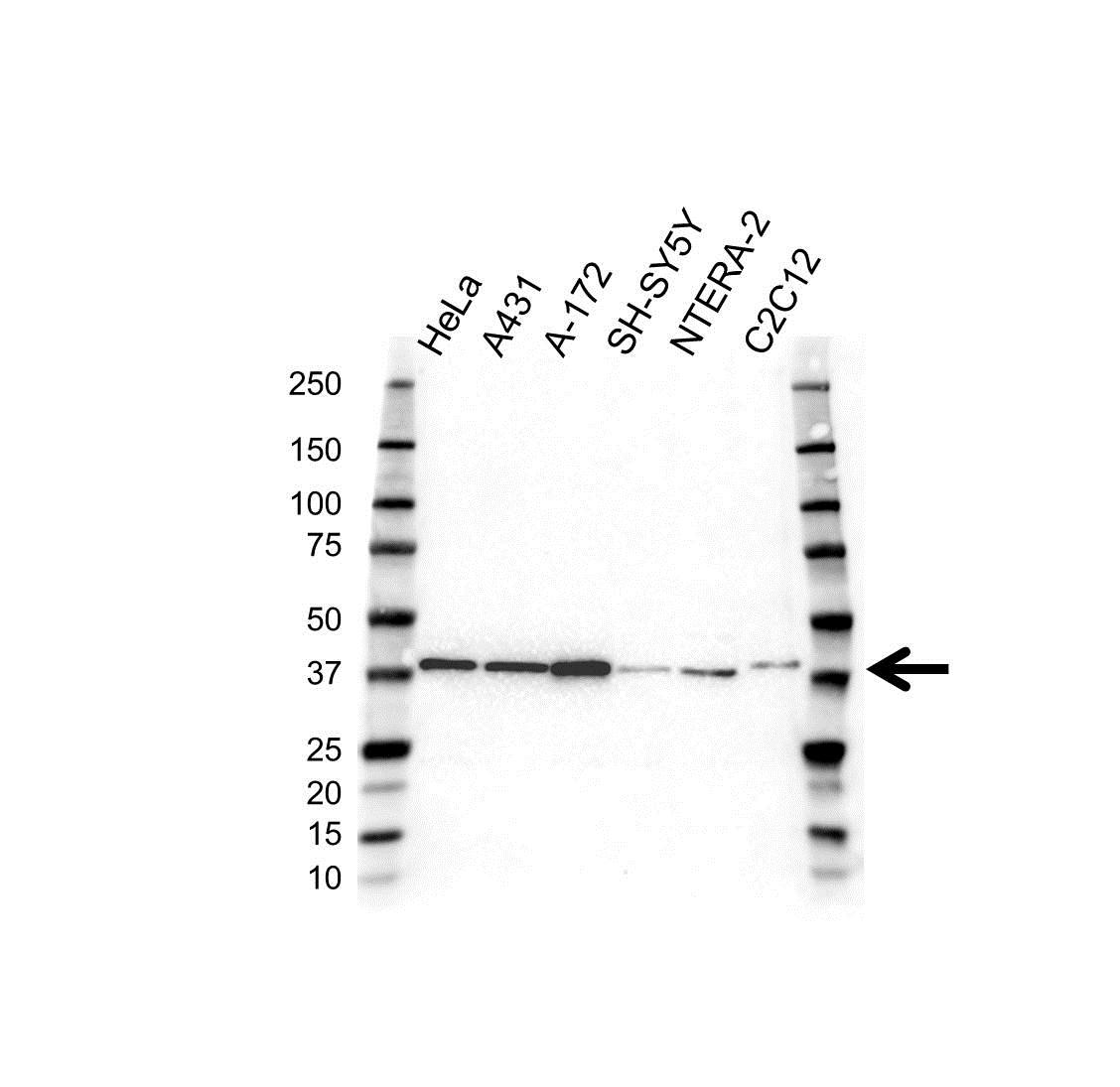 Anti PCBP1 Antibody (PrecisionAb Polyclonal Antibody) gallery image 1