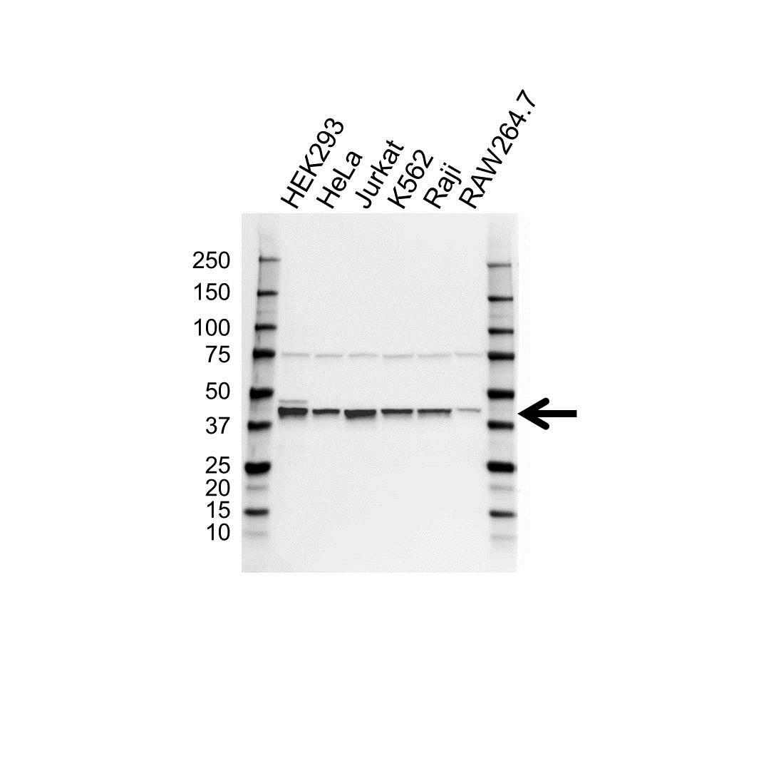 Anti PCBP2 Antibody (PrecisionAb Polyclonal Antibody) gallery image 1