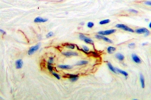 Anti Human PDGF BB Homodimer Antibody thumbnail image 1