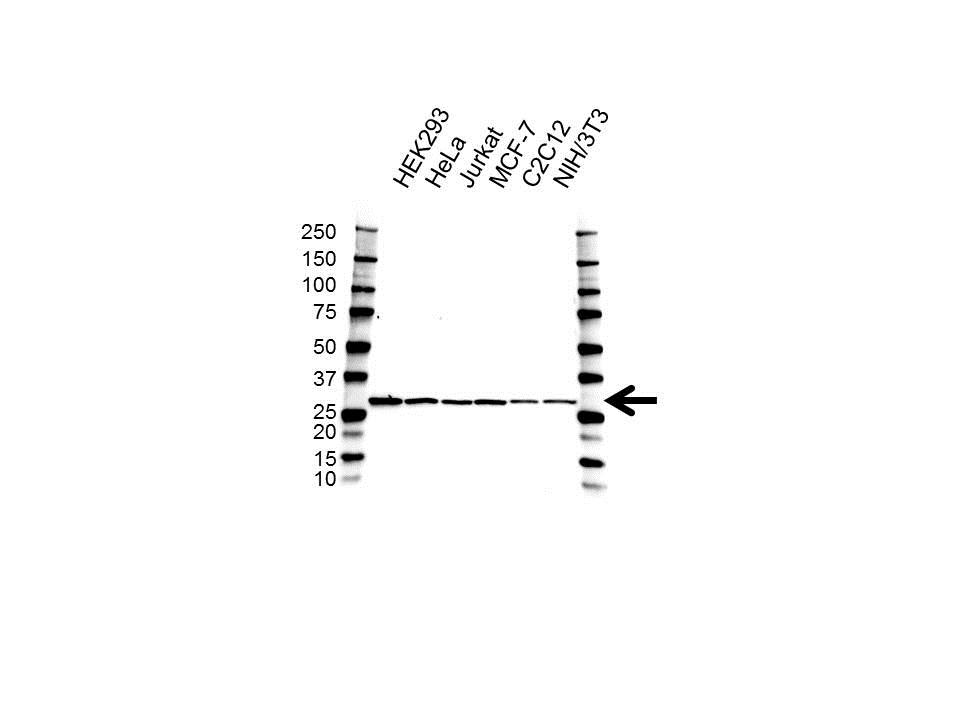 Anti PDGF-B Antibody (PrecisionAb Polyclonal Antibody) gallery image 1