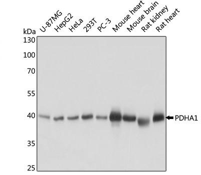 Anti PDHA1 Antibody thumbnail image 1