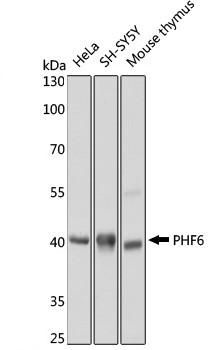 Anti PHF6 Antibody gallery image 1