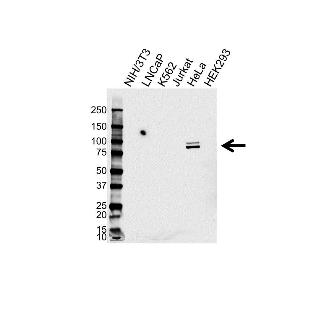 Anti Phosphodiesterase 4D Antibody (PrecisionAb Polyclonal Antibody) gallery image 1