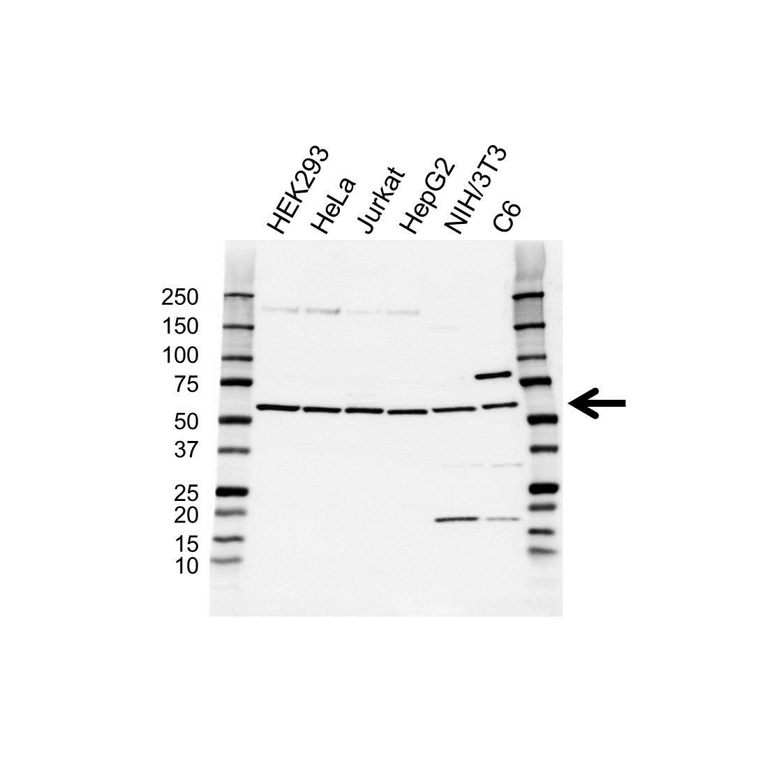 Anti PI-4 Kinase 2A Antibody (PrecisionAb™ Polyclonal Antibody) gallery image 1