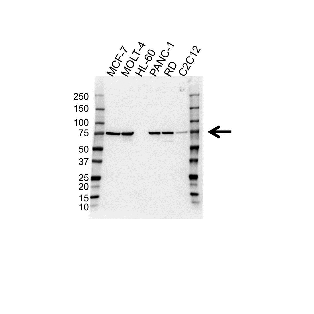 Anti PIAS3 Antibody (PrecisionAb™ Polyclonal Antibody) gallery image 1