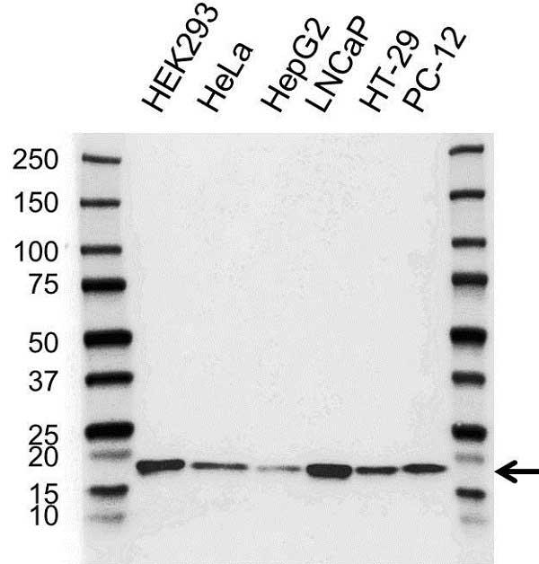 Anti PIN1 Antibody (PrecisionAb Polyclonal Antibody) gallery image 1