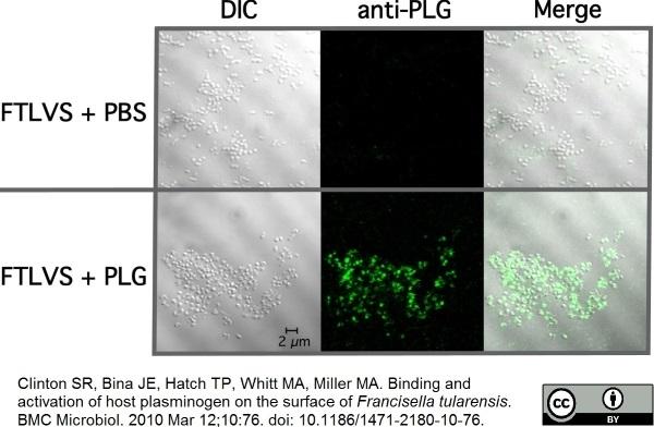 Anti Human Plasminogen Antibody thumbnail image 1