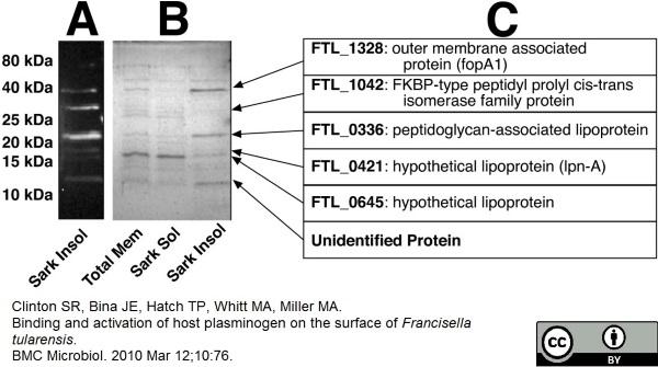 Anti Human Plasminogen Antibody thumbnail image 2