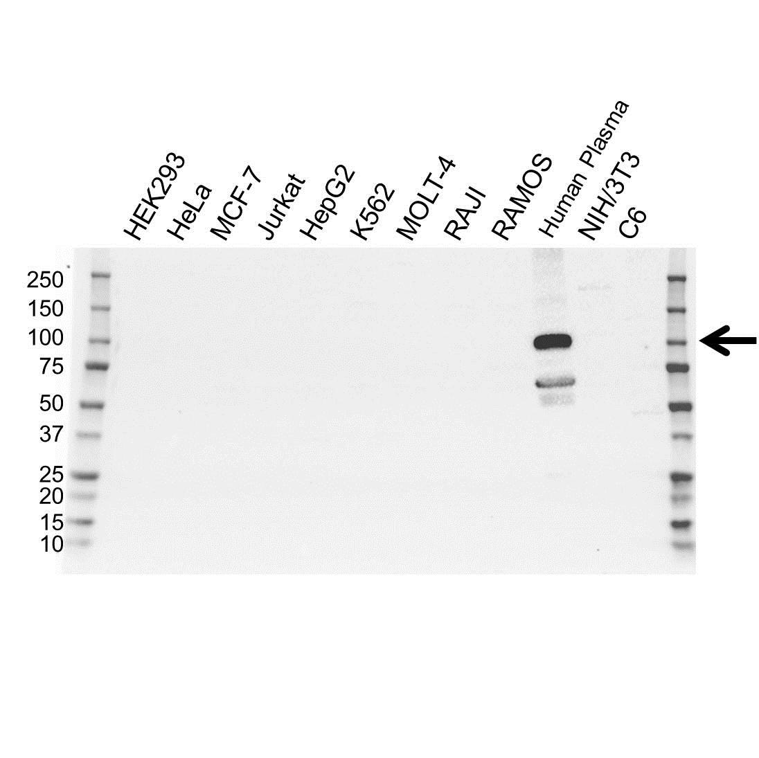Anti Plasminogen Antibody (PrecisionAb™ Polyclonal Antibody) gallery image 1