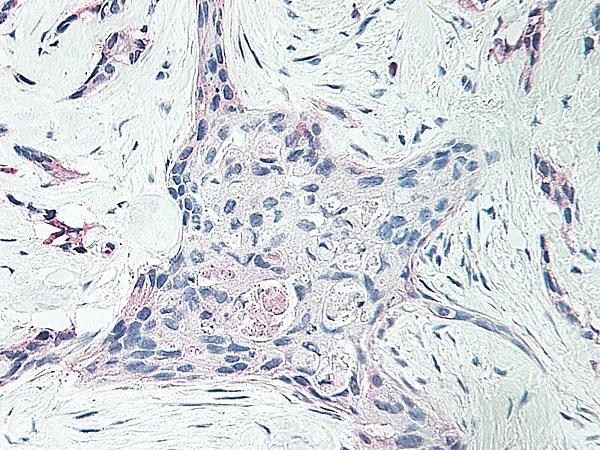 Anti Human Platelet Factor-4 Antibody thumbnail image 1
