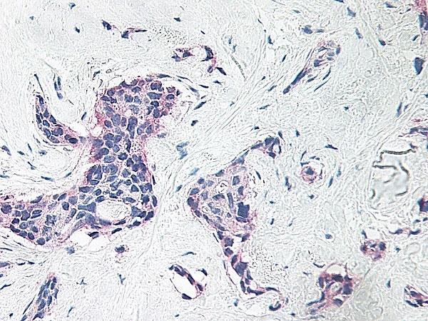 Anti Human Platelet Factor-4 Antibody thumbnail image 2