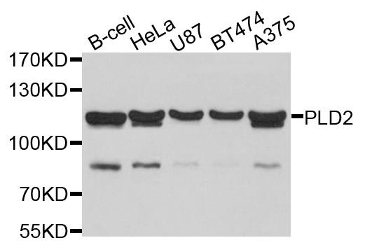 Anti PLD2 Antibody gallery image 1