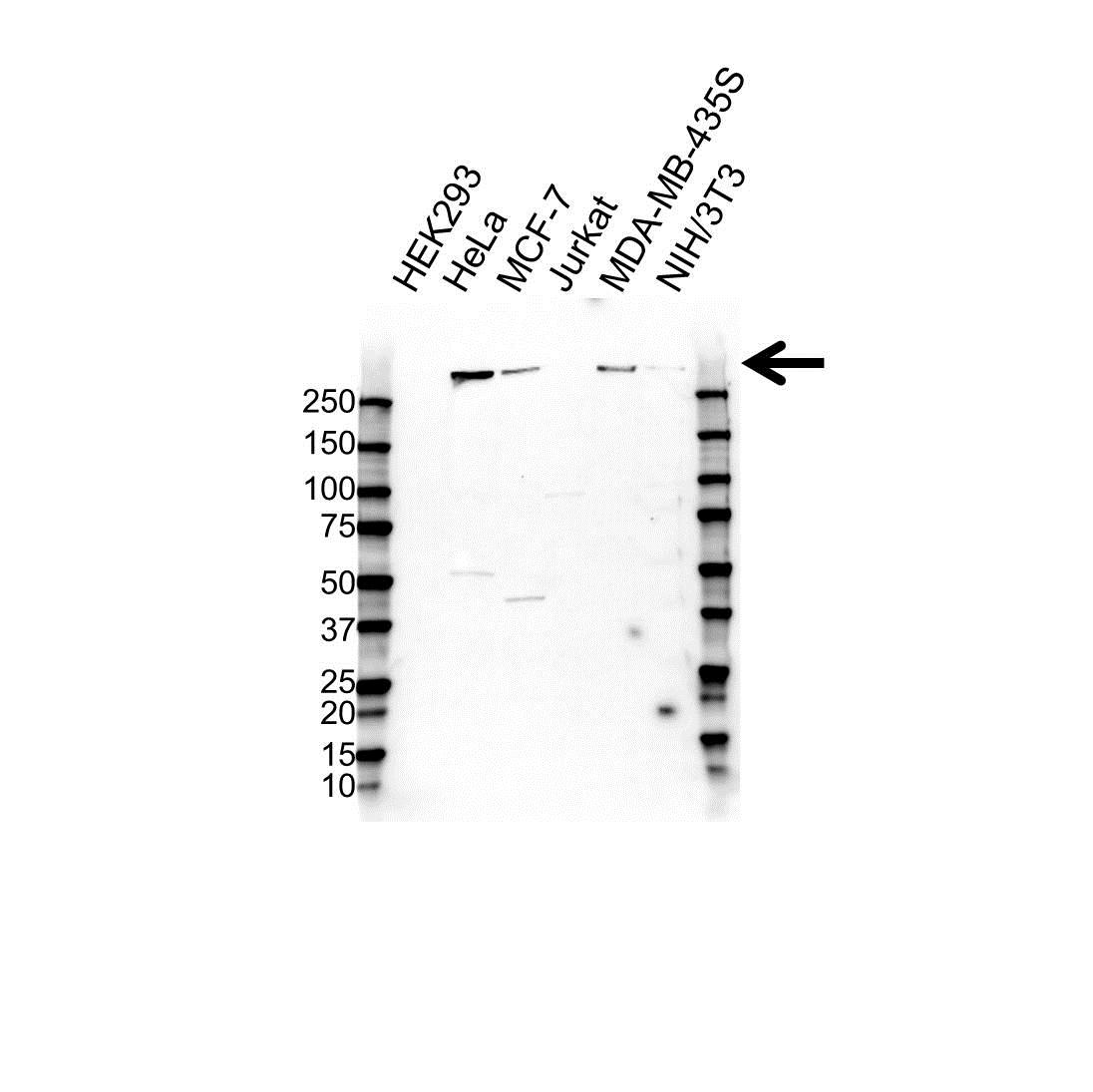 Anti Plectin Antibody (PrecisionAb™ Polyclonal Antibody) gallery image 1