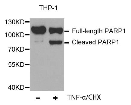 Anti Poly (ADP-Ribose) Polymerase-1 Antibody gallery image 1