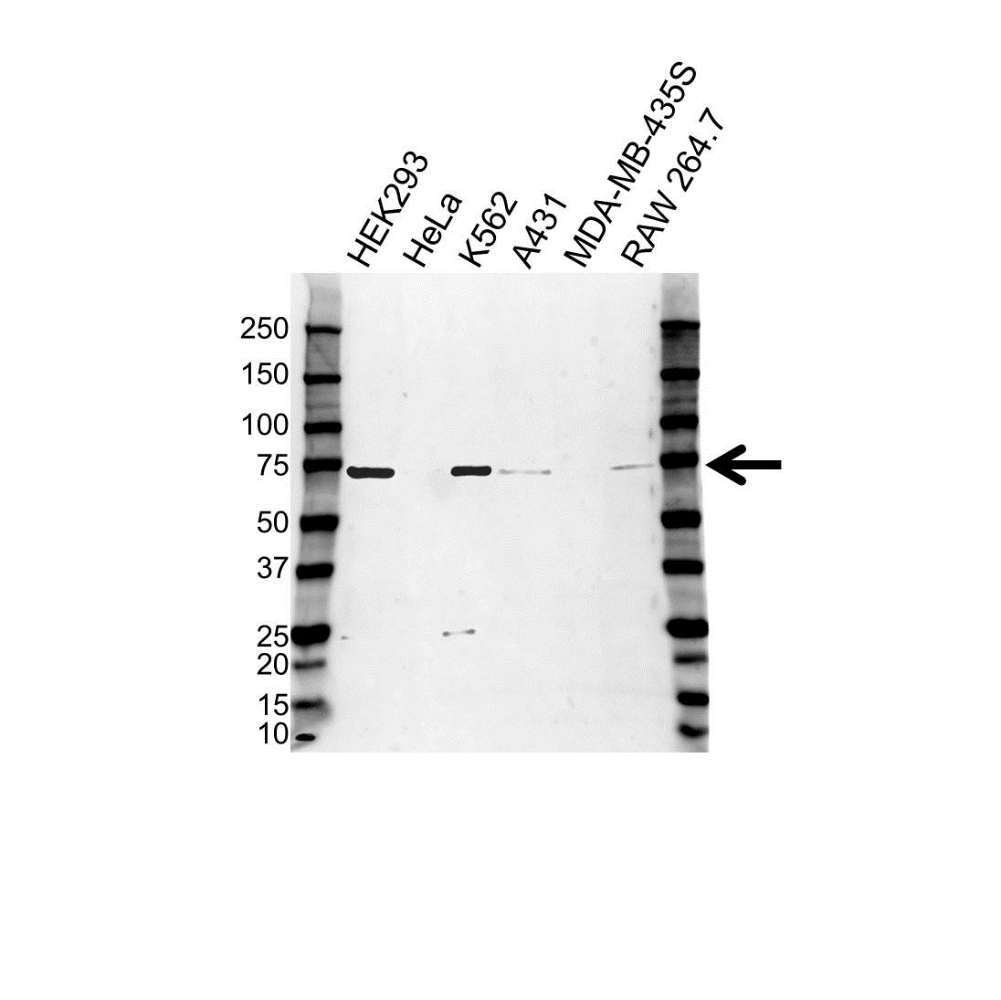 Anti Poly (ADP-Ribose) Polymerase 3 Antibody (PrecisionAb™ Polyclonal Antibody) gallery image 1