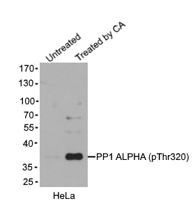 Anti PP1 Alpha (pThr320) Antibody gallery image 1