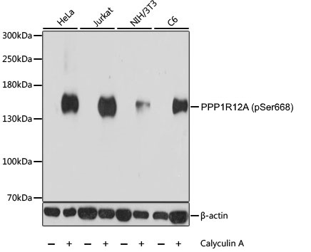 Anti PPP1R12A (pSer668) Antibody gallery image 1