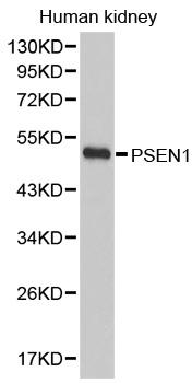 Anti Presenilin-1 Antibody gallery image 1