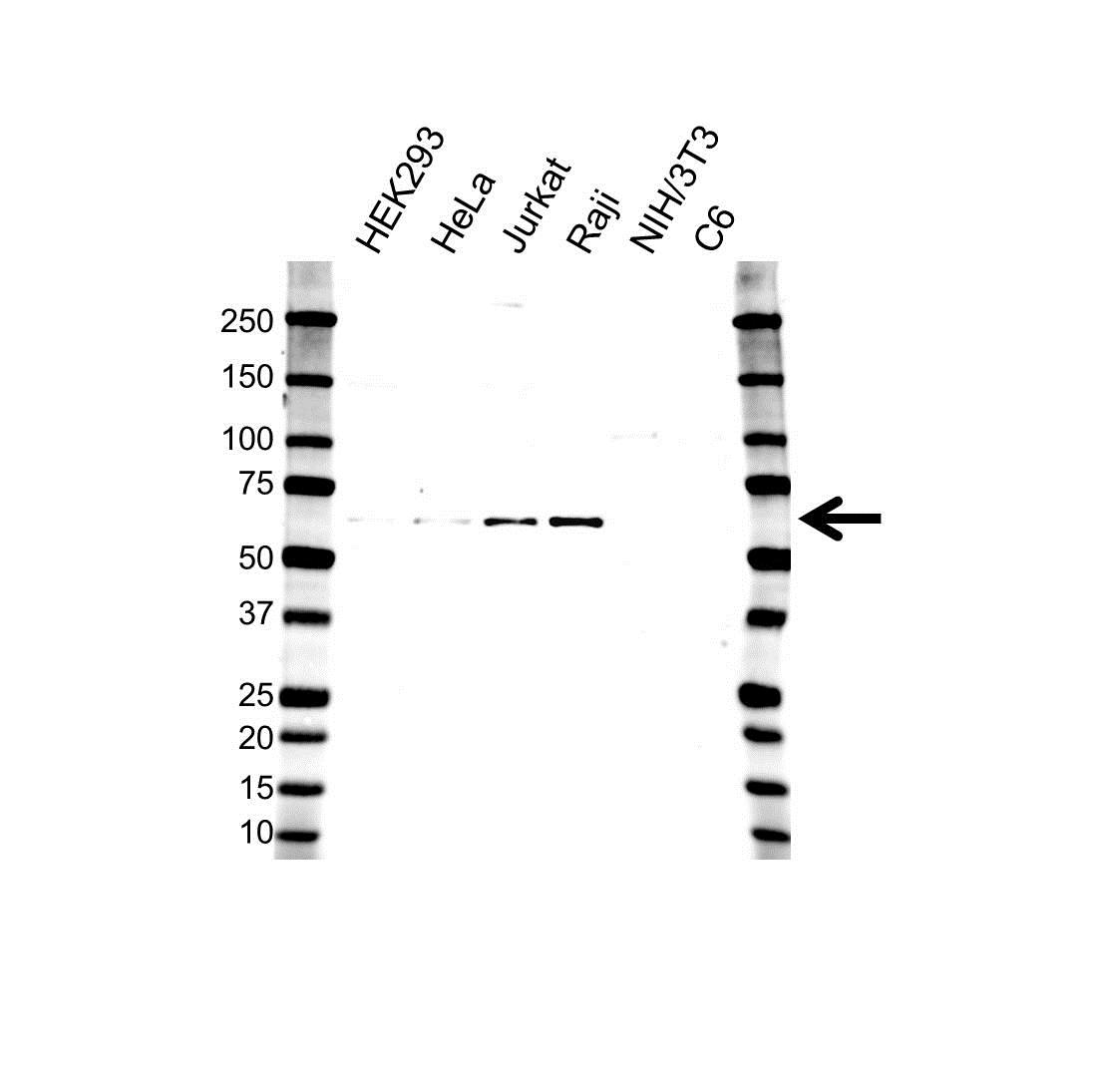 Anti Presenilin-1 Antibody (PrecisionAb™ Polyclonal Antibody) gallery image 1