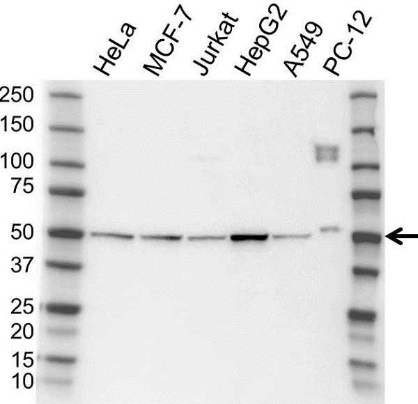 Anti PRKAR2A Antibody (PrecisionAb Polyclonal Antibody) gallery image 1