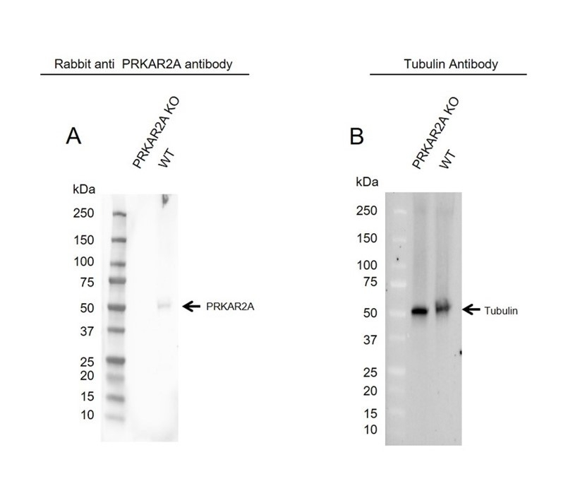 Anti PRKAR2A Antibody (PrecisionAb Polyclonal Antibody) thumbnail image 2