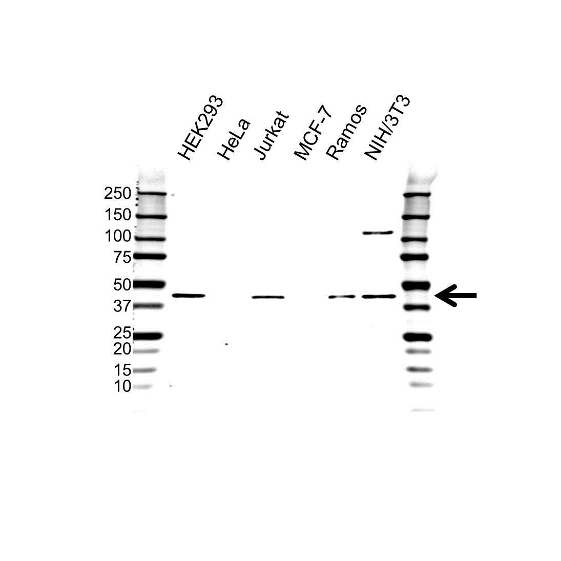 Anti PRMT1 Antibody (PrecisionAb™ Polyclonal Antibody) gallery image 1