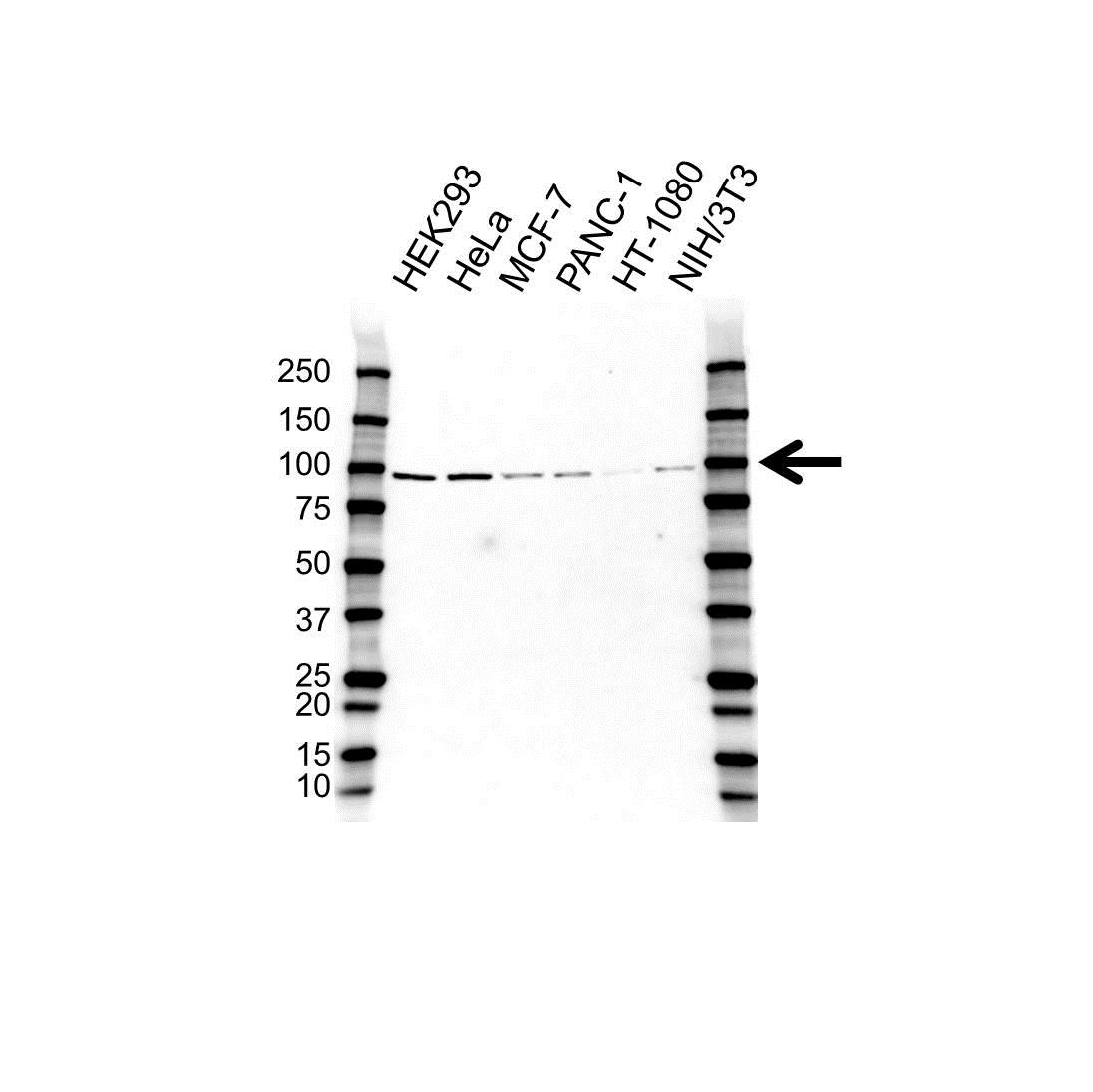 Anti Protein Kinase D2 Antibody (PrecisionAb Polyclonal Antibody) gallery image 1