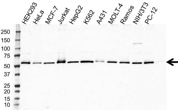 Anti PRPF19 Antibody (PrecisionAb Polyclonal Antibody) gallery image 1