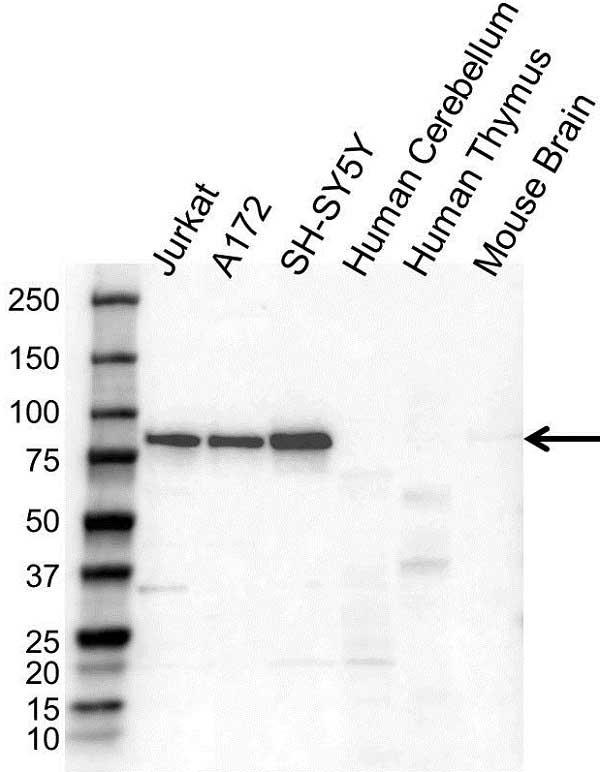 Anti PSIP1 Antibody (PrecisionAb Polyclonal Antibody) gallery image 1