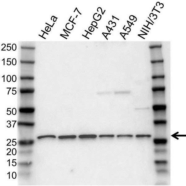 Anti PSMA7 Antibody (PrecisionAb Polyclonal Antibody) gallery image 1