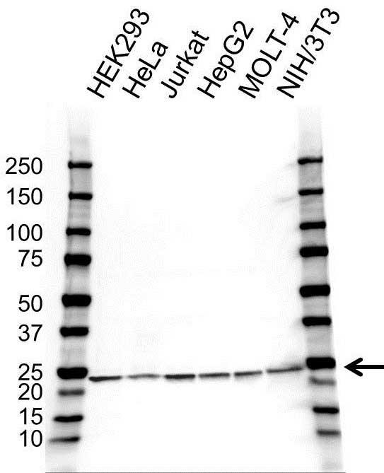 Anti PSMB1 Antibody (PrecisionAb Polyclonal Antibody) gallery image 1