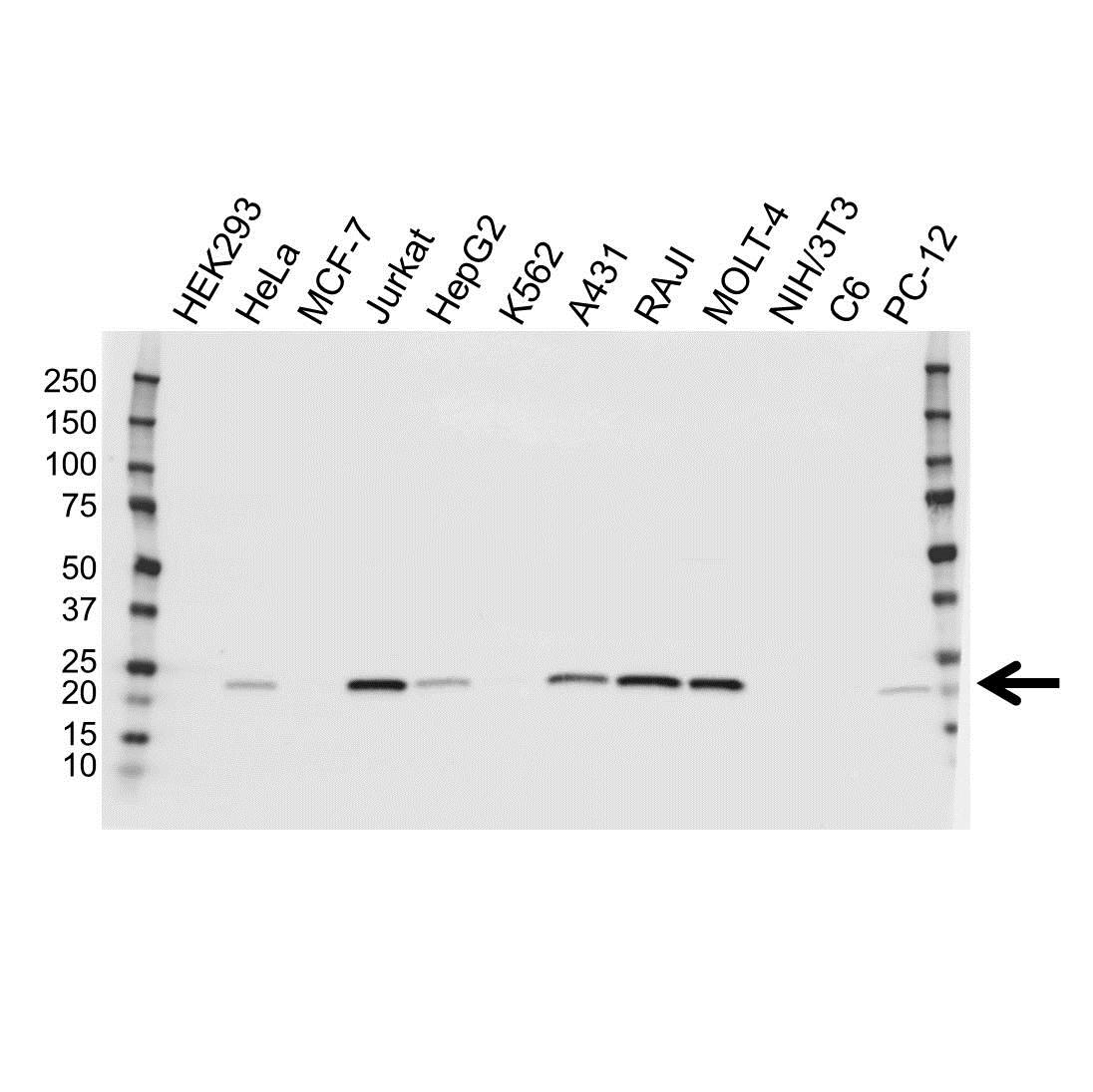 Anti PSMB8 Antibody (PrecisionAb™ Polyclonal Antibody) gallery image 1