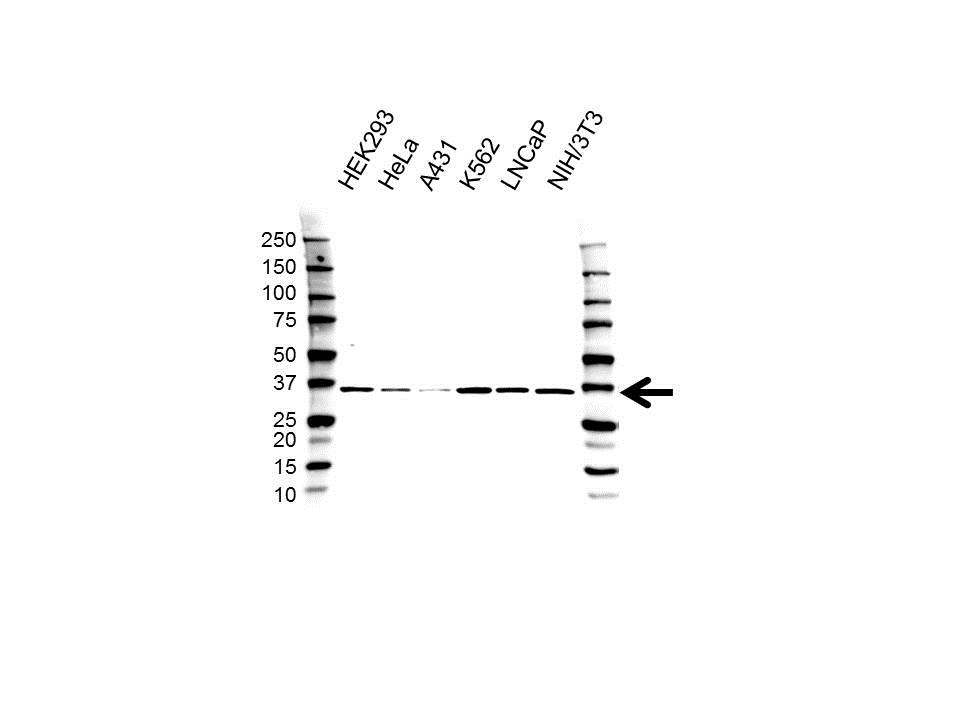 Anti PSMD14 Antibody (PrecisionAb™ Polyclonal Antibody) gallery image 1