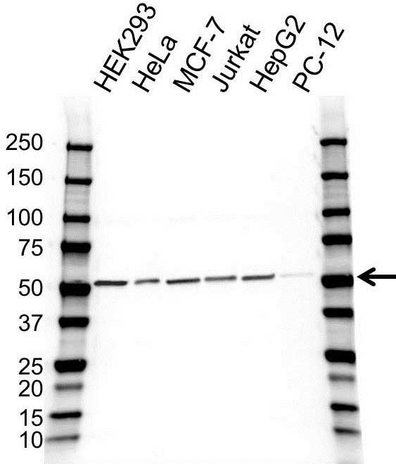 Anti PSMD4 Antibody (PrecisionAb Polyclonal Antibody) gallery image 1