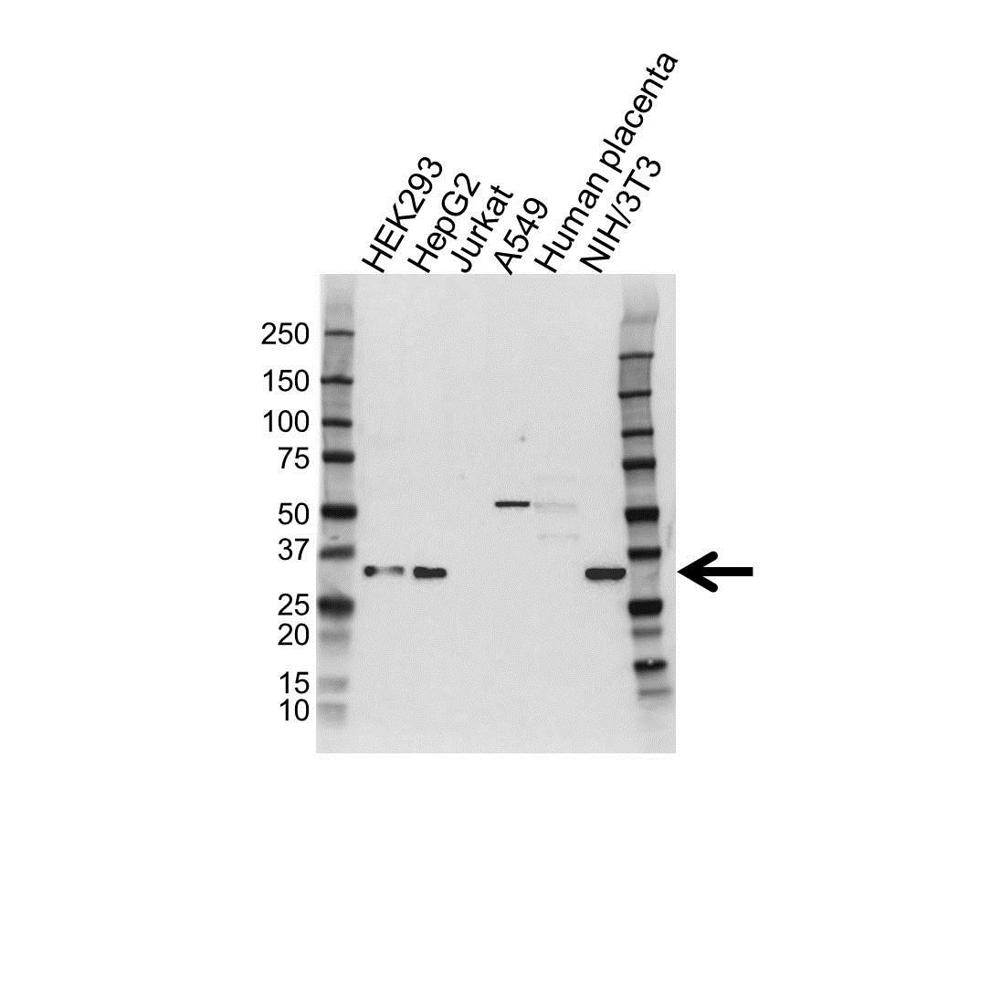 Anti PSMD9 Antibody (PrecisionAb Polyclonal Antibody) gallery image 1