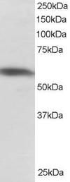 Anti Human PTBP1 (N-Terminal) Antibody thumbnail image 1