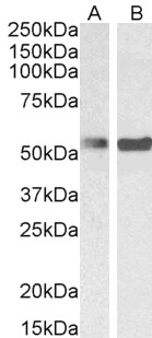 Anti Human PTBP1 (N-Terminal) Antibody thumbnail image 5
