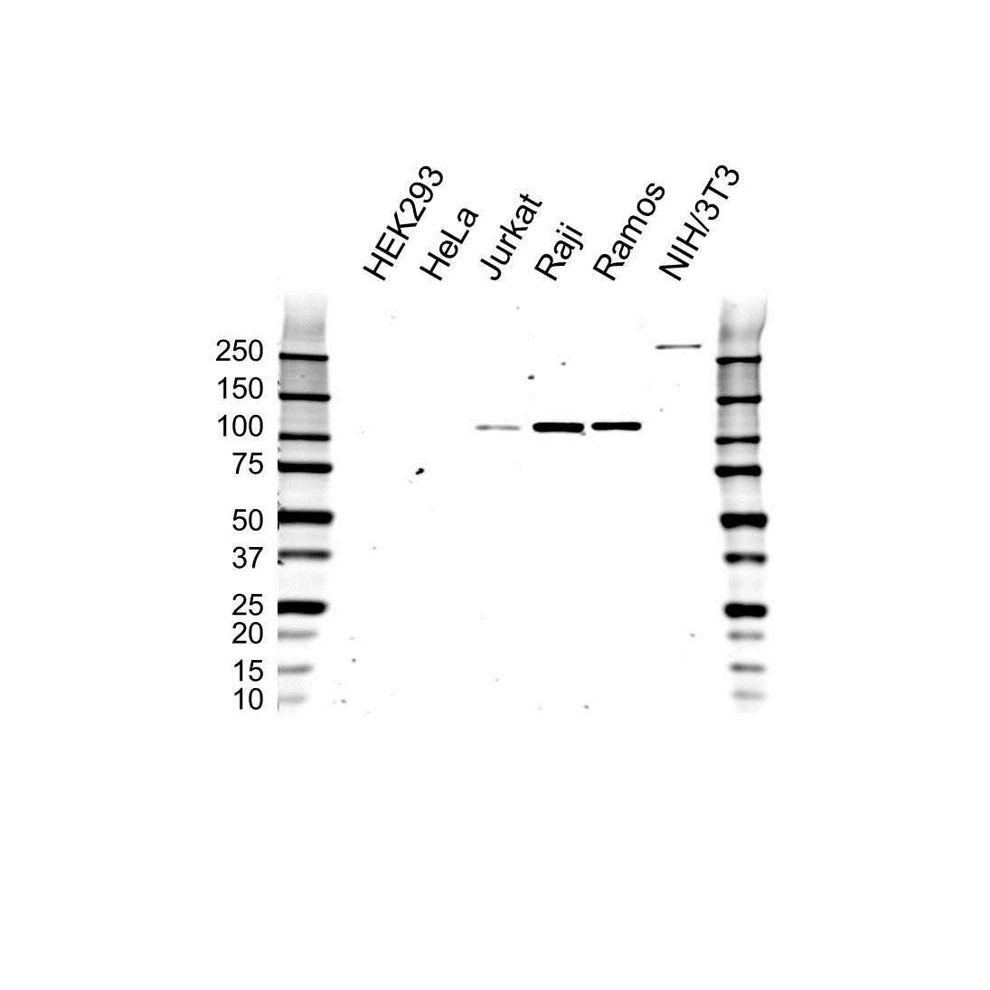 Anti PTK2B Antibody (PrecisionAb Polyclonal Antibody) gallery image 1