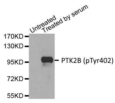 Anti PTK2B (pTyr402) Antibody gallery image 1