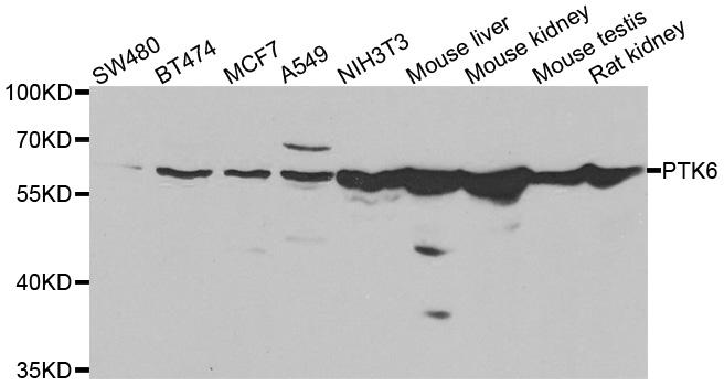 Anti PTK6 Antibody thumbnail image 1