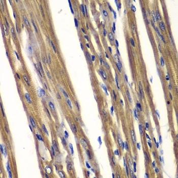 Anti PTPN2 Antibody thumbnail image 2
