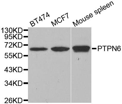 Anti PTPN6 Antibody gallery image 1