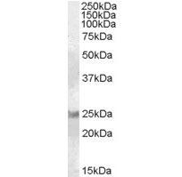 Anti Human RAB8A (C-Terminal) Antibody gallery image 1